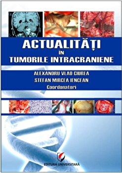 Actualitati in tumorile intracraniene/Alexandru Vlad Ciurea, Stefan Mircea Iencean de la Universitara