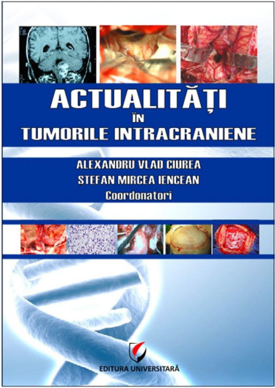 Actualitati in tumorile intracraniene